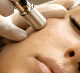 Microdermabrasion Treatment image
