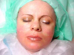 after the application of Plazan Placenta Collagen Mask image1