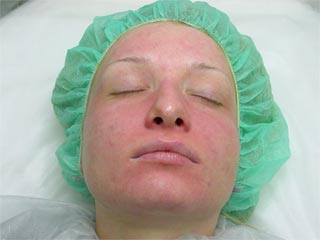 The patient after a peeling procedure image