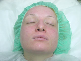 20 min after Placenta Collagen Mask (tissue) image