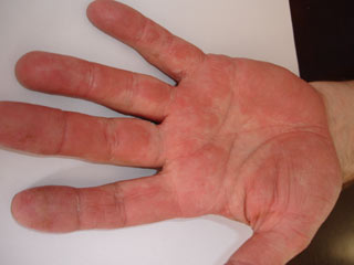Psoriasis Field Test 3 weeks Later image
