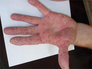 Psoriasis. Before Plazan Treatment image