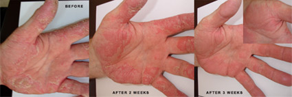 Test Results - use of Plazan Cosmeceuticals Against Psoriasis